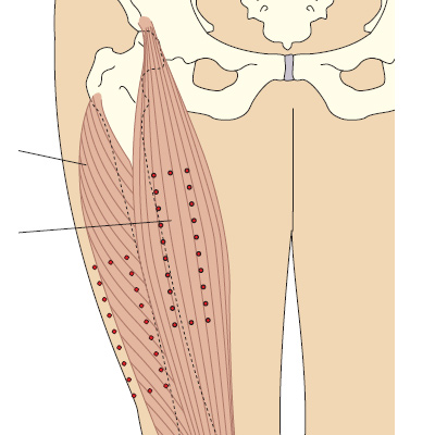 Прямая мышца бедра и латеральная головка четырехглавой мышцы бедра