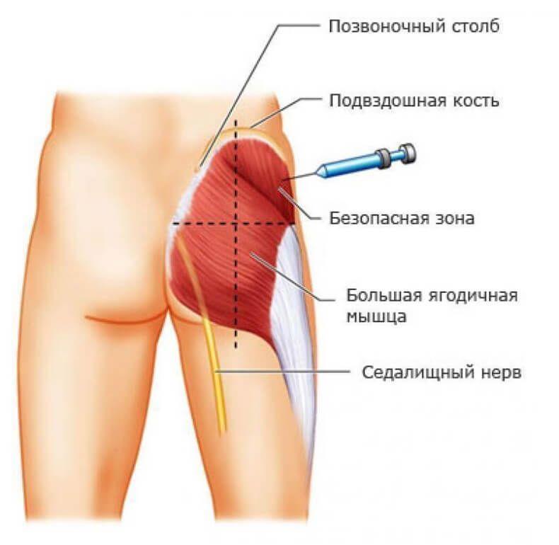 Как сделать укол в предплечье внутримышечно