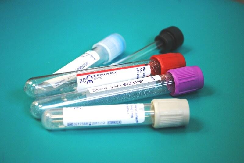 Вакуумный забор крови: пробирки