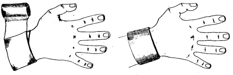 Типы бинтовых повязок: циркулярная