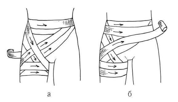Типы бинтовых повязок: колосовидная на тазобедренную и паховую области