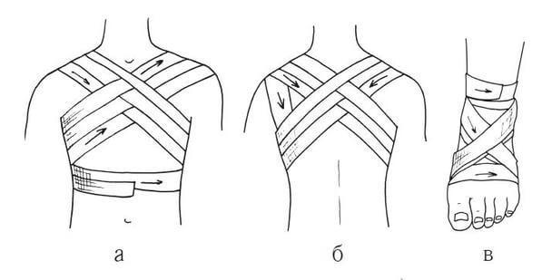 Типы бинтовых повязок: крестообразная