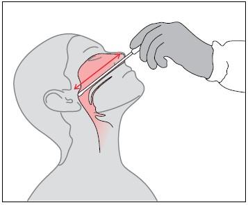 Взятие мазка из носа
