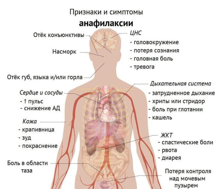 Анафилактический шок: признаки и симптомы